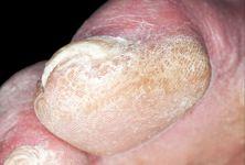 Sklerodermie